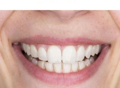 Limpiador ultrasónico de dientes SMILY